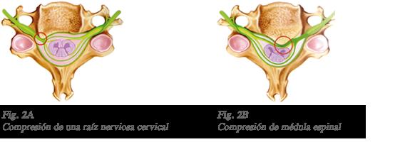 Fig2A y Fig2B