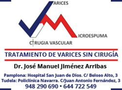 Eliminar varices sin cirugía