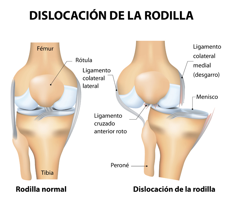 Knee dislocation and normal. Lateral trauma to the knee, torn collateral ligaments, cruciate ligament injury and meniscus injury. Human anatomy