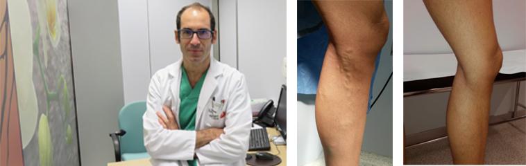 Recuperación venas varicosas de la para eliminar cirugía
