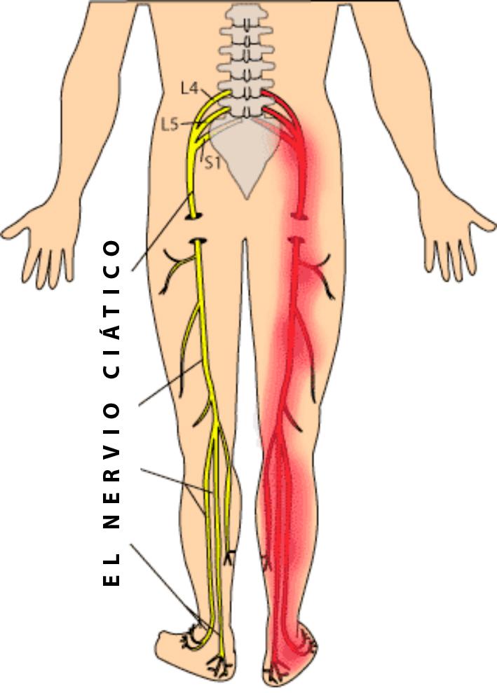 El nervio ciatico