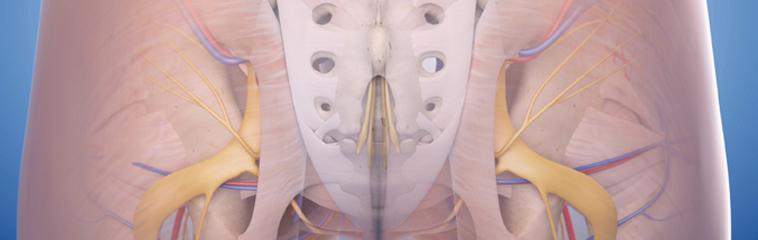 el nervio ciatico se puede operar