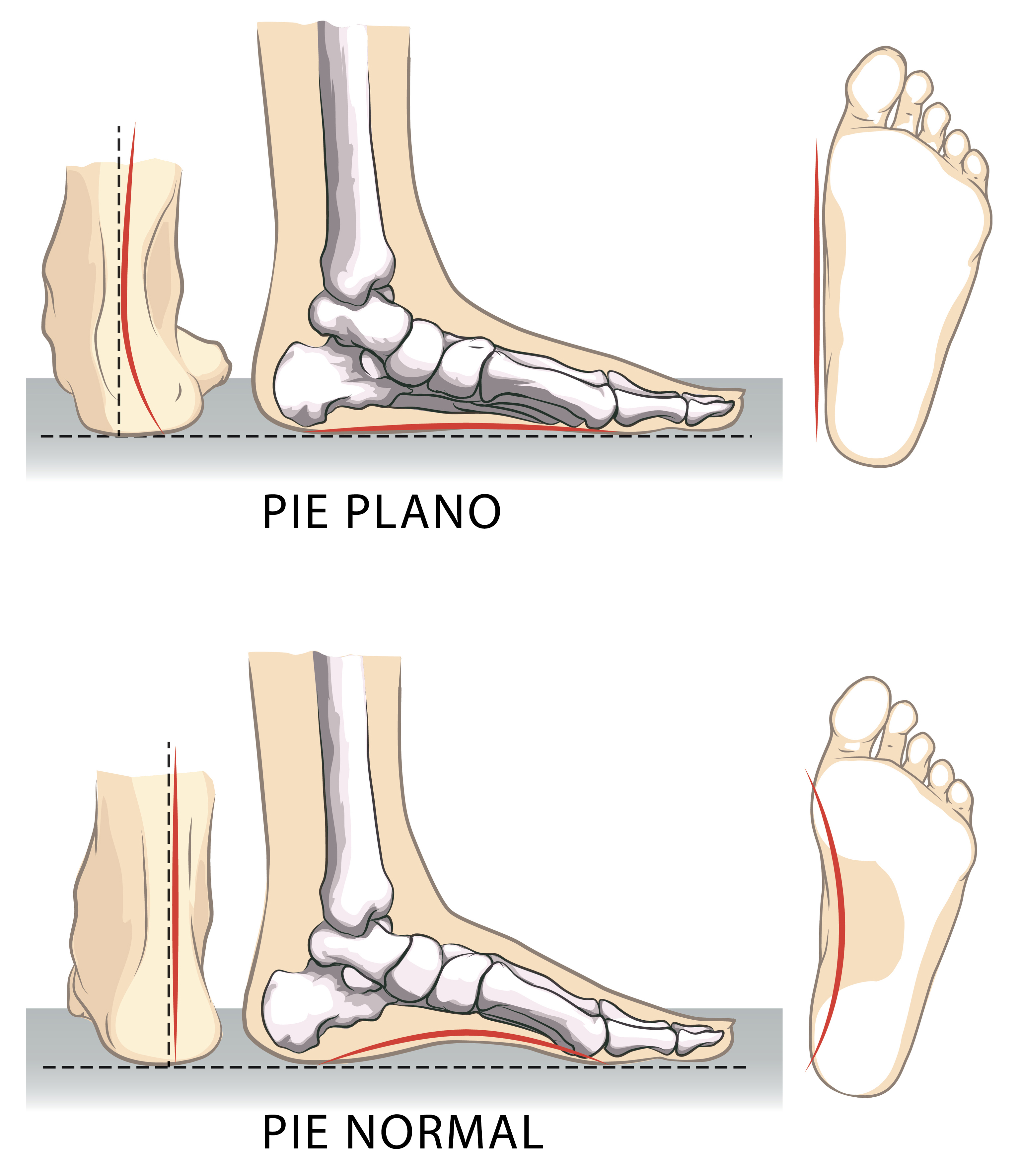 Flat and normal feet.