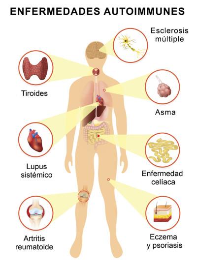 causas de enfermedad lupus