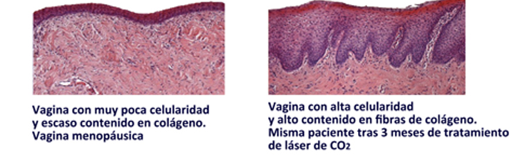 vagina colageno_ok