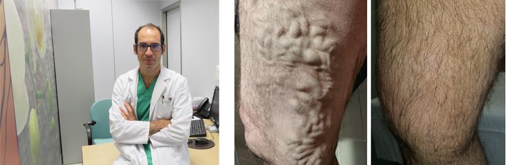 Tratamiento no invasivo para las varices <div id='b'> <span class='sb'><br><strong>Dr. José Manuel Jiménez.</strong> Cirujano vascular Clínica San Fermín de Pamplona  y Policlínica Navarra de Tudela</span></b>