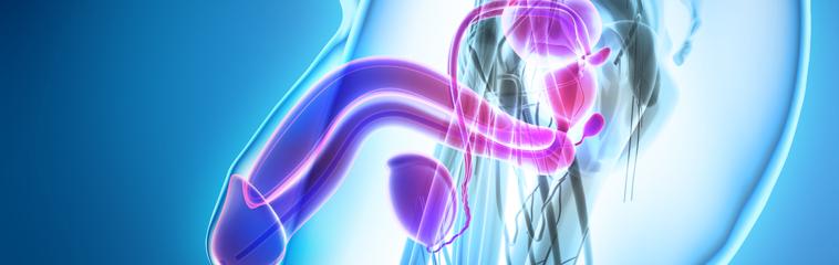 cirugía de próstata acuática