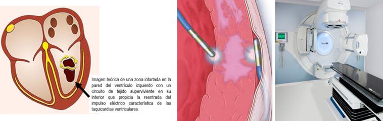 Eliminar arritmias mediante radioterapia no invasiva sin usar catéteres, ¿qué arritmias y cuándo? <div id='b'> <span class='sb'><br><strong>Dr. Antonio Asso</strong>. Jefe Unidad de Arritmias, Hospital Universitario Miguel Servet. Director Unidad de Arritmias, Hospital QuironSalud. Zaragoza</span></b>
