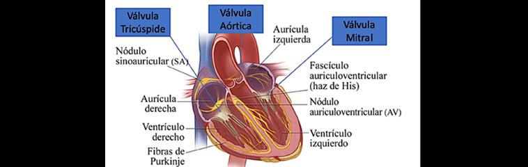 Enfermedades  de las válvulas  del corazón <div id='b'> <span class='sb'><br><strong>Pedro María Azcárate</strong>. Doctor en Medicina por la Universidad de Navarra. Especialista en Cardiología. Nº Colegiado 26/31-06741</span></b>