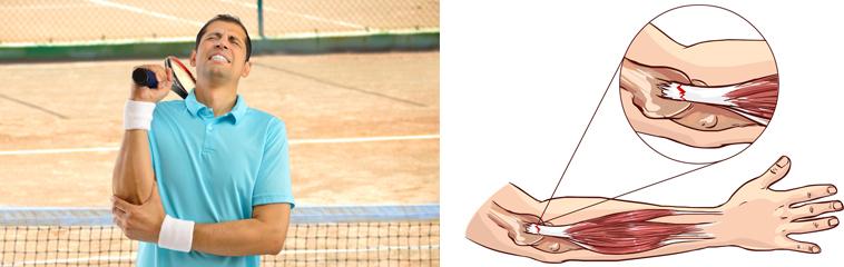 ¿Qué es el codo de tenista? <div id='b'> <span class='sb'><br><strong>Anaïs Navarro Alonso</strong>. Fisioterapeuta. Complejo Hospitalario de Navarra</span></b>