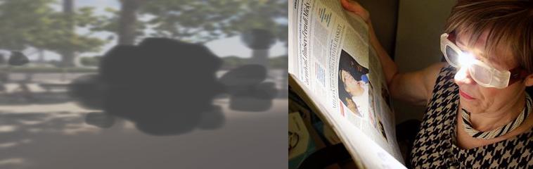El paciente diabético  y la Baja Visión <div id='b'> <span class='sb'><br><strong>Ángel Yanguas Alfaro y Silvia de la Llama Celis.</strong> Optometristas especialistas en Baja Visión de Yanguas Ópticos | www.yanguasopticos.es </span></b>