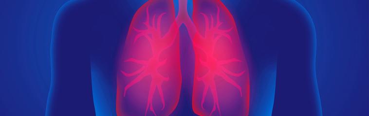 Enfermedad respiratoria crónica: ejercicio en tiempos de COVID-19 <div id='b'> <span class='sb'><br><strong>Janko Calvo Gil.</strong> Fisioterapeuta del Hospital Reina Sofía de Tudela</span></b>