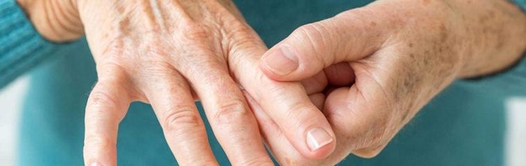 <h1 class='entry-title h2-style'>Medidas no farmacológicas en el tratamiento de la artritis reumatoide</h1><div id='b' style='margin-bottom: 10px;'> <span class='sb'><br><strong>Silvia Anastasia Calvo Campos y Ana Carmen Ferrer Gazol</strong>. Enfermeras. Centro de Salud Torrero la Paz. Zaragoza</span></b>