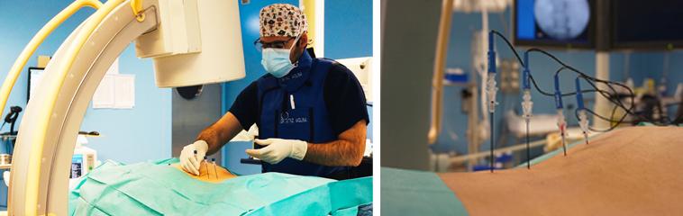 <h1 class='entry-title h2-style'>Neuromodulación con radiofrecuencia. El futuro en el tratamiento del dolor</h1><div id='b' style='margin-bottom: 10px;'> <span class='sb'><br><strong>Dr. Juan A. Martínez Molina.</strong> Especialista en Anestesiologia y Tratamiento del Dolor | www.drmartinezmolina.com</span></b>