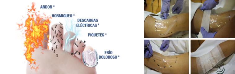 <h1 class='entry-title h2-style'>Parche de capsaicina 179 mg, una alternativa eficaz para el tratamiento del dolor neuropático periférico</h1><div id='b' style='margin-bottom: 10px;'> <span class='sb'><br><strong>Dr. Juan A. Martínez Molina.</strong> Especialista en Anestesiologia y Tratamiento del Dolor | www.drmartinezmolina.com</span></b>