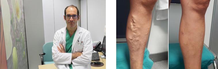 <h1 class='entry-title h2-style'>¿Cuál es el tratamiento más efectivo para mis varices?</h1><div id='b' style='margin-bottom: 10px;'> <span class='sb'><br><strong>Dr. José Manuel Jiménez.</strong> Cirujano vascular | varicessincirugia.org</span></b>